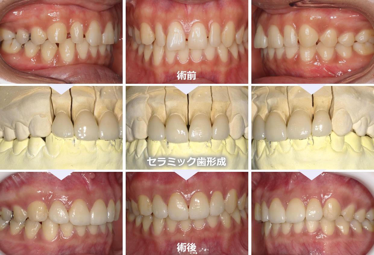 すきっ歯の審美症例