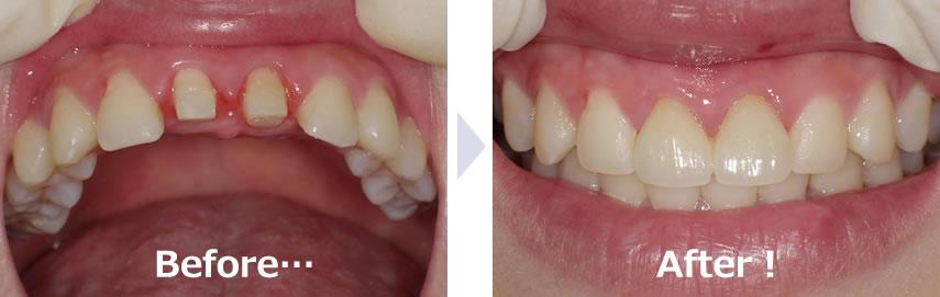 前歯のセラミック治療ビフォアフター
