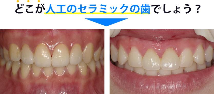 どこがセラミックの歯でしょうか?