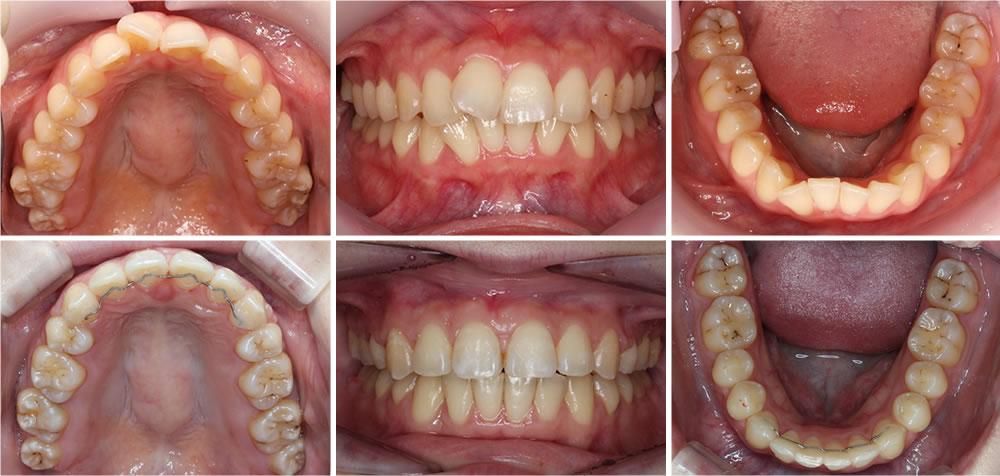 上顎の部分矯正治療症例