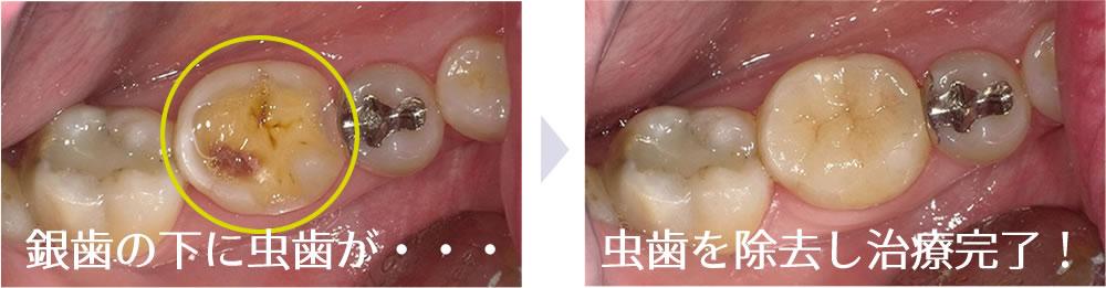 奥歯のセラミックインレー