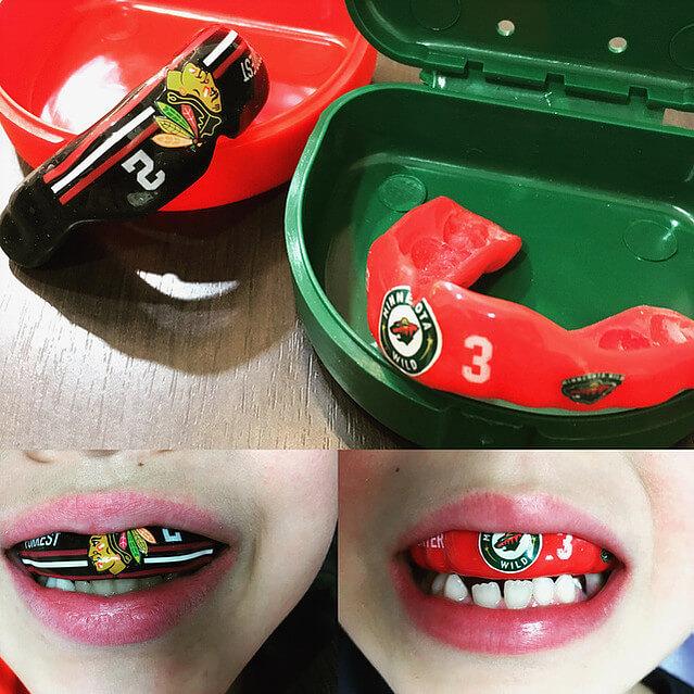 歯科スポーツマウスピース